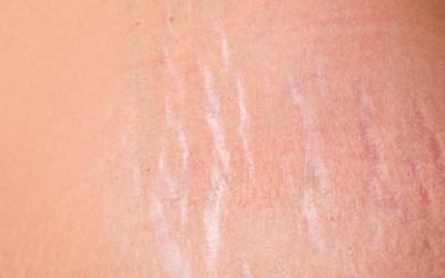 Tratamentos estéticos para eliminar as estrias de vez